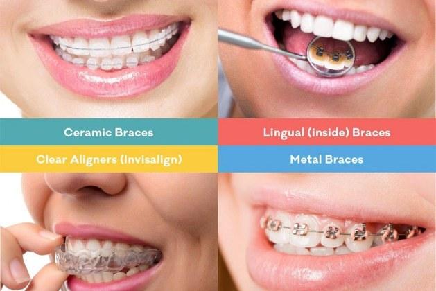 چرا باید به دندان پزشکی مراجعه کنیم