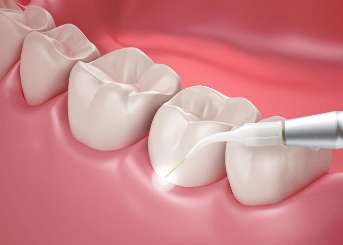 انواع کاربردهای لیزر در دندانپزشکی