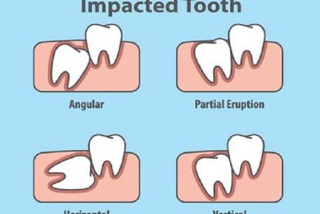 دندان نهفته چیست و باید با آن چه کرد؟