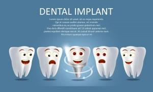 10 نکته مهم قبل از کاشت ایمپلنت دندان