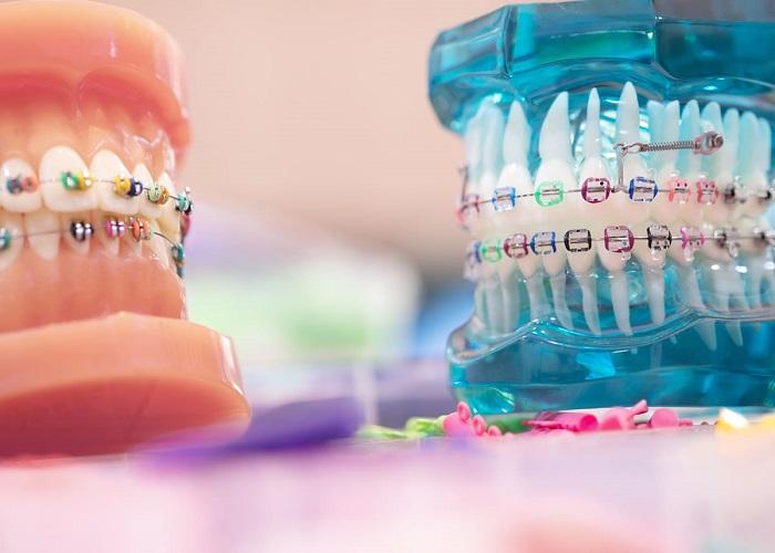 مراقبت از ارتودنسی دندان در طول همه گیری کرونا