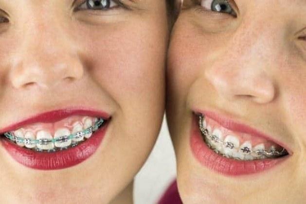 روش های ارتودنسی دو دندان جلو