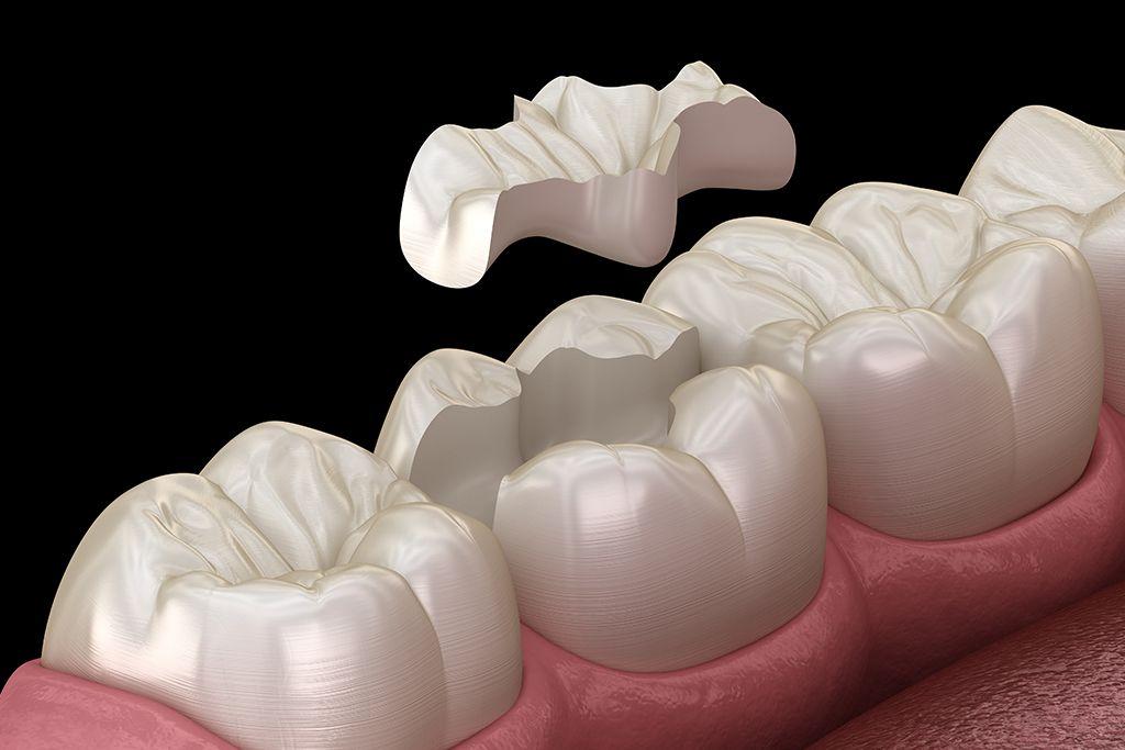 راهنمای دندانپزشکی کمک به ساختار دندان
