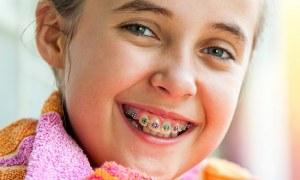 چه زمانی برای ارتودنسی کودکان مناسب است؟