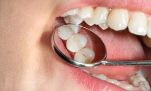 معرفی انواع کامپوزیت دندانی