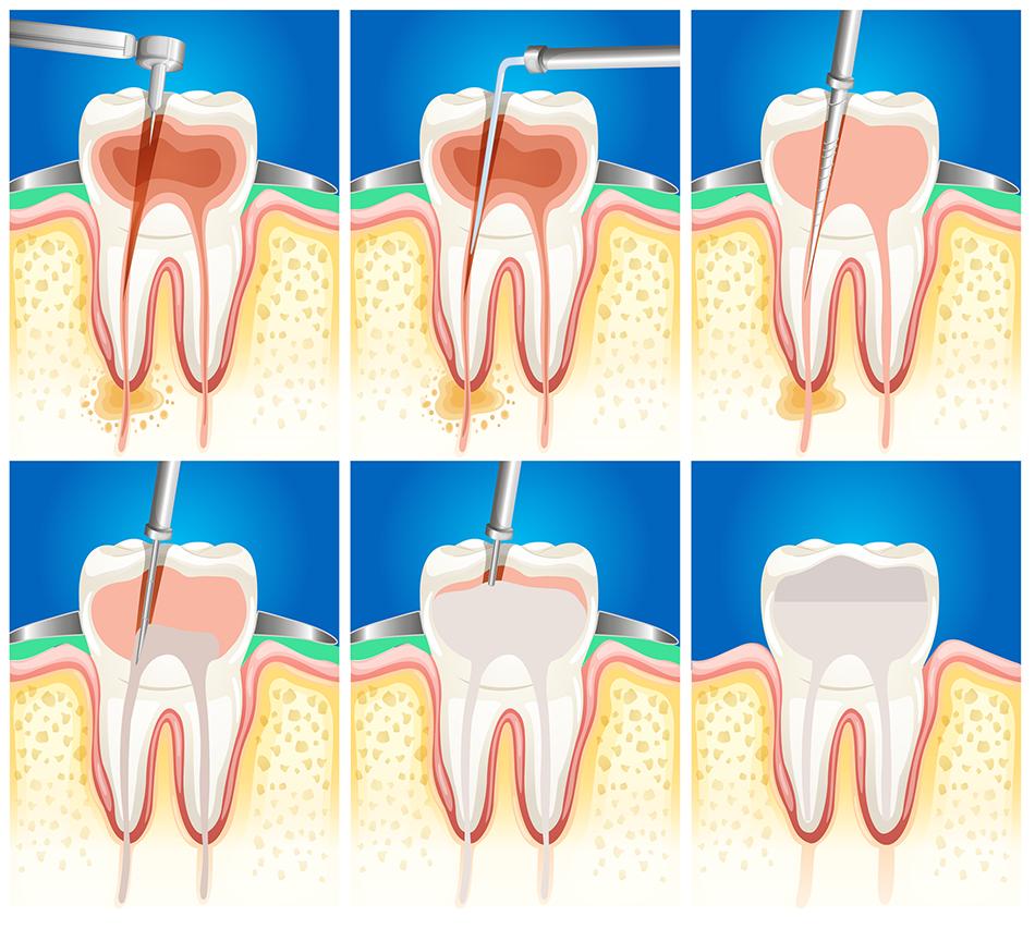 عصب کشی دندان