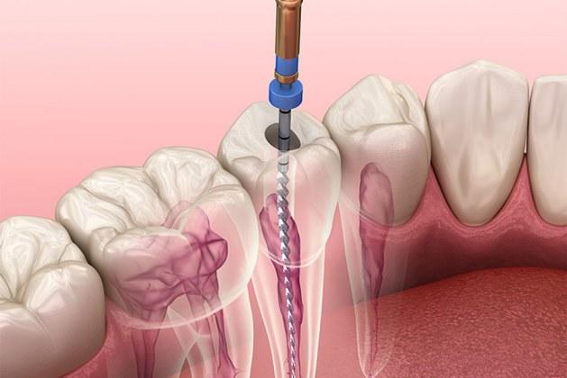 عصب کشی دندان درمانی مناسب در بهبود پوسیدگی دندان-هزینه و عوارض آن