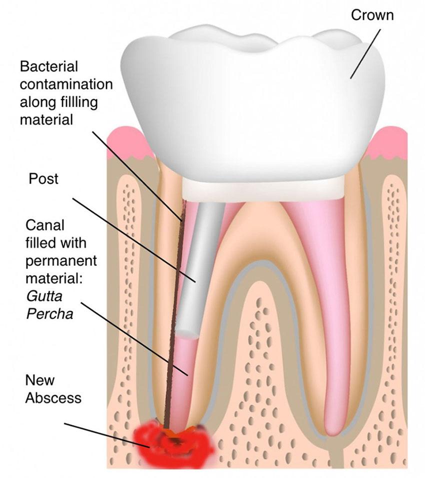 اجزای دندان آسیب دیده