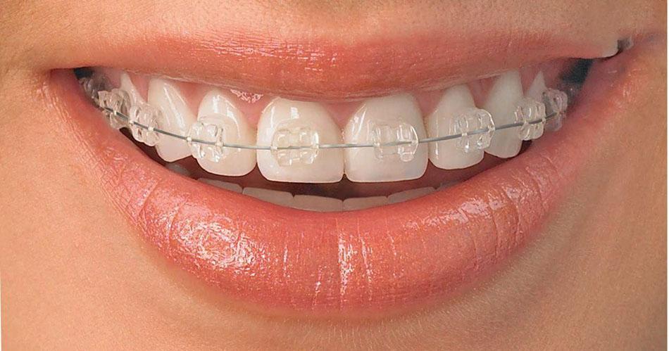 ارودنسی دندان