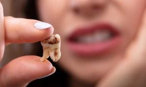 علت پوسیدگی دندان در کودکان و بزرگسالان چیست؟نحوه درمان آن